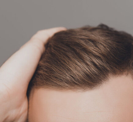 How To Cover Hair Transplant Scar