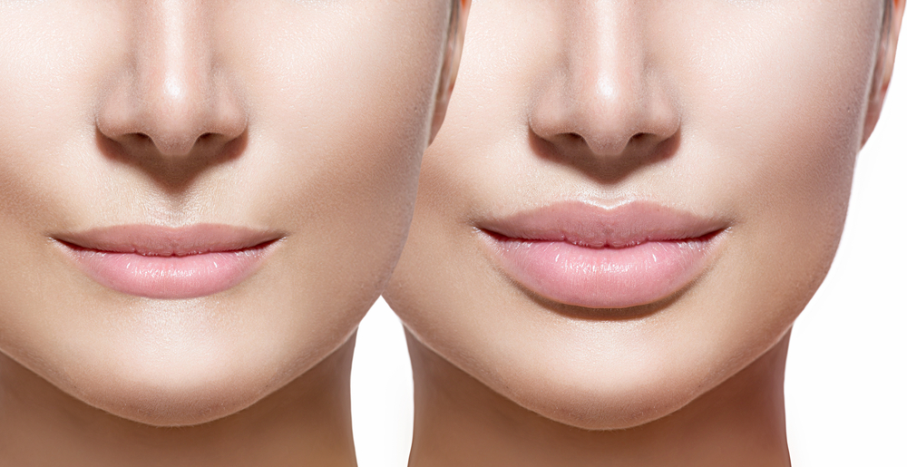 Lip Fillers before after